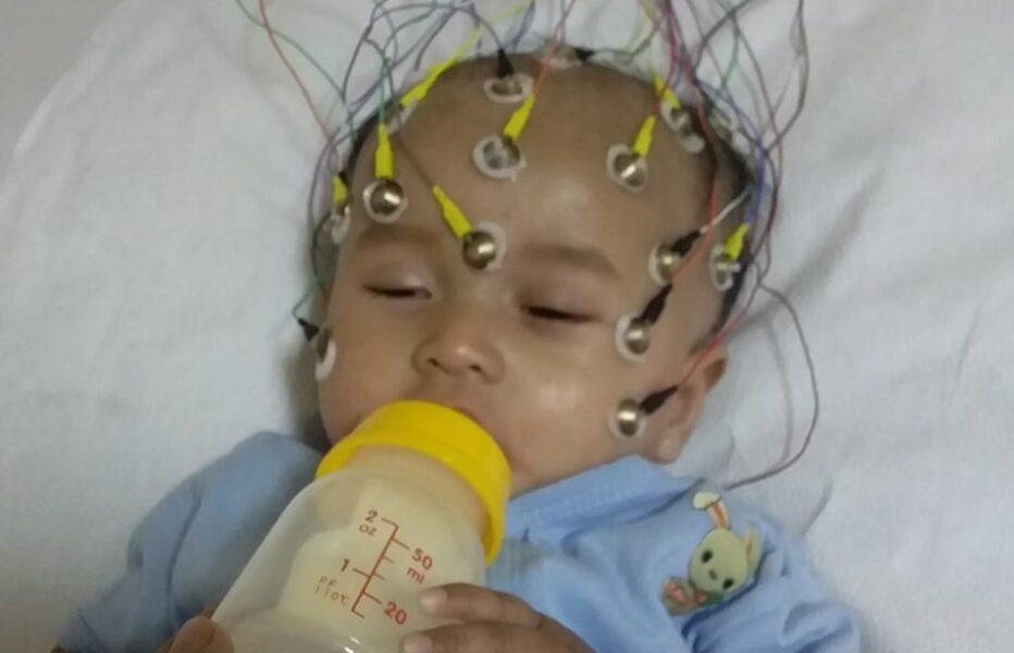 Balita berusia 1 tahun saat ini tergelak di ruang perawatan rumah sakit sangat memprihatinkan menderita penyakit Hypoaldosterone Hypokalemi